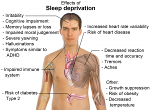 adolescents and sleep deprivation should high school Sleep deprivation among adolescents is a serious health concern and should be addressed as such increasingly, teens are being prescribed medications to address sleeplessness but because medication can carry with it side effects including nightmares, daytime grogginess, abuse and dependency, it should be considered with care.