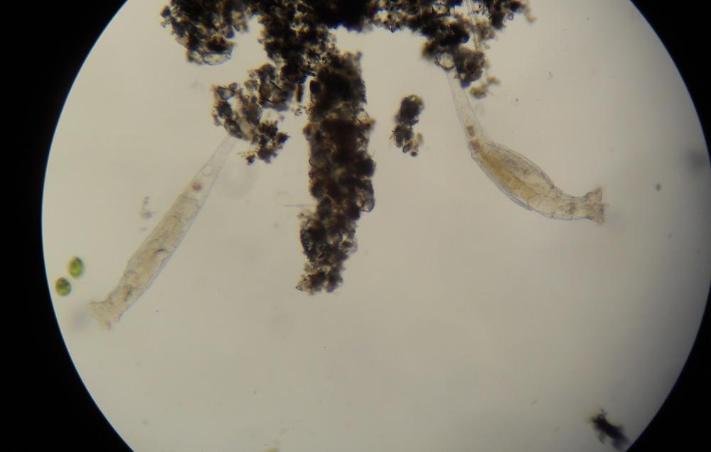 Rotifer Under Microscope 40x